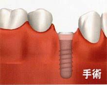 田新歯科インプラント手術