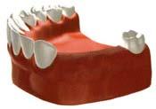 田新歯科インプラントブリッジで修復した場合治療前