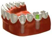 田新歯科インプラントブリッジで修復した場合治療後