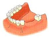 田新歯科インプラント症例治療前