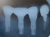田新歯科インプラント症例治療後2